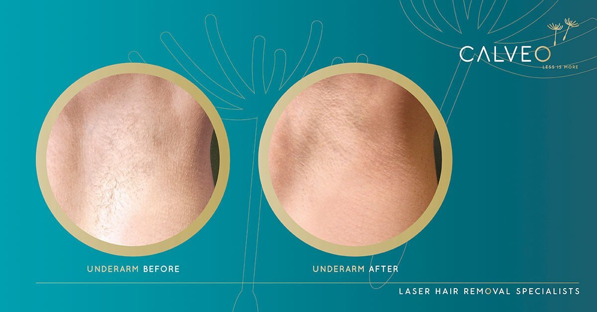 Laser hair removal underarms before and after pictures