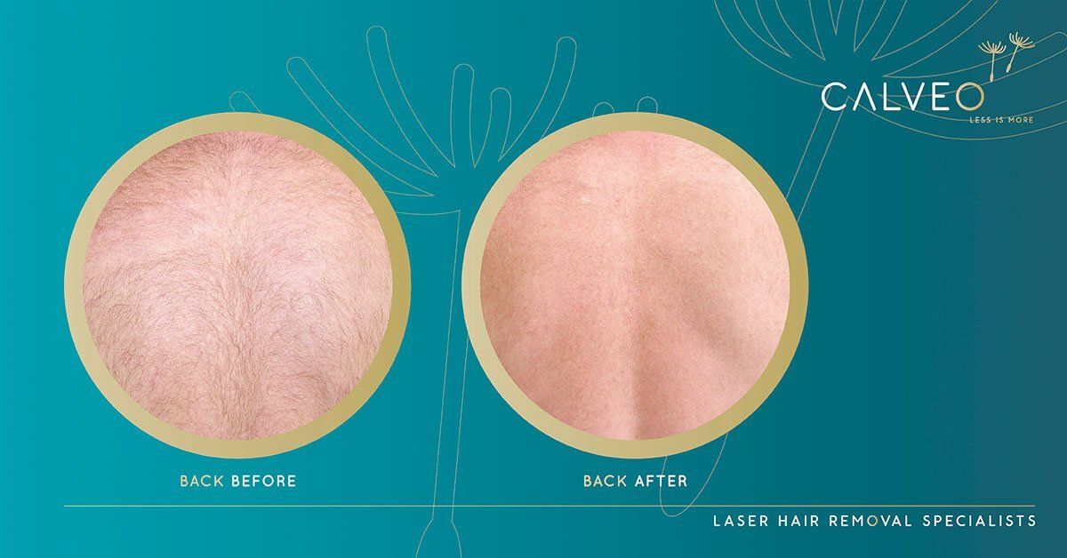 Back hair removal before and after pictures