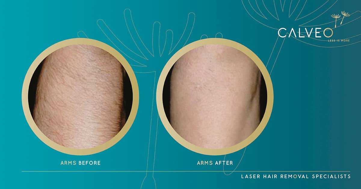 Permanent arm hair removal before and after pictures