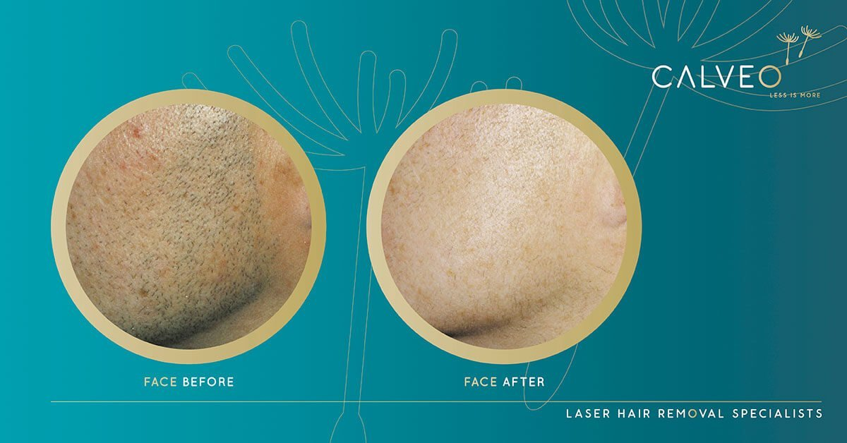facial laser hair removal before and after