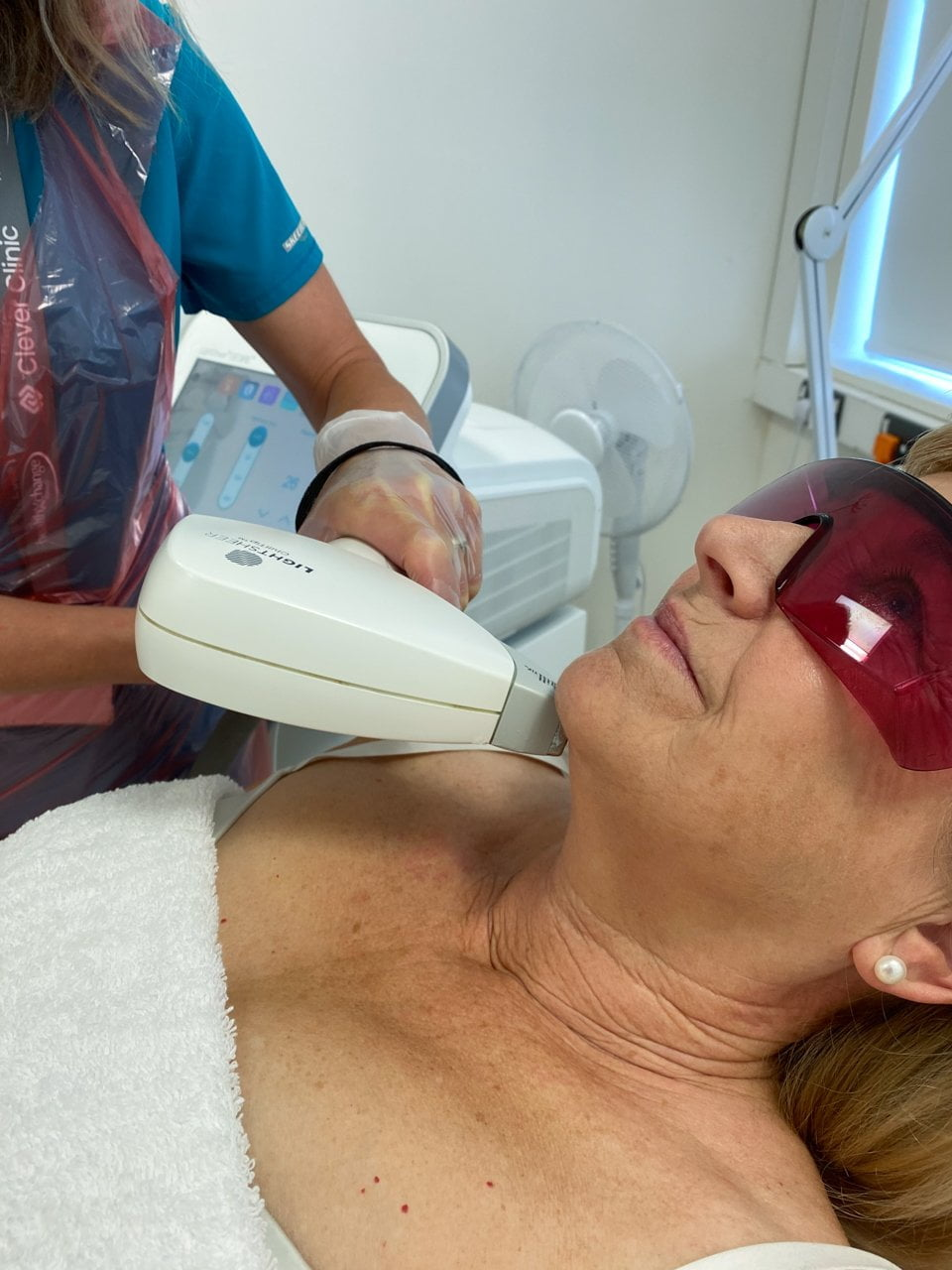Laser hair removal on the face