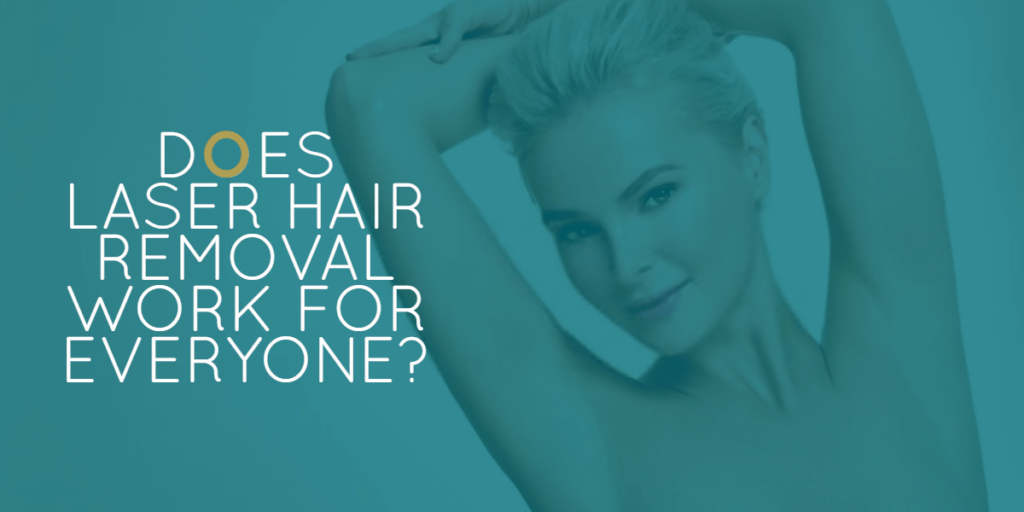 Does laser hair removal work for everyone?
