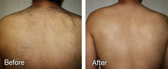 Laser hair removal back hair before and after