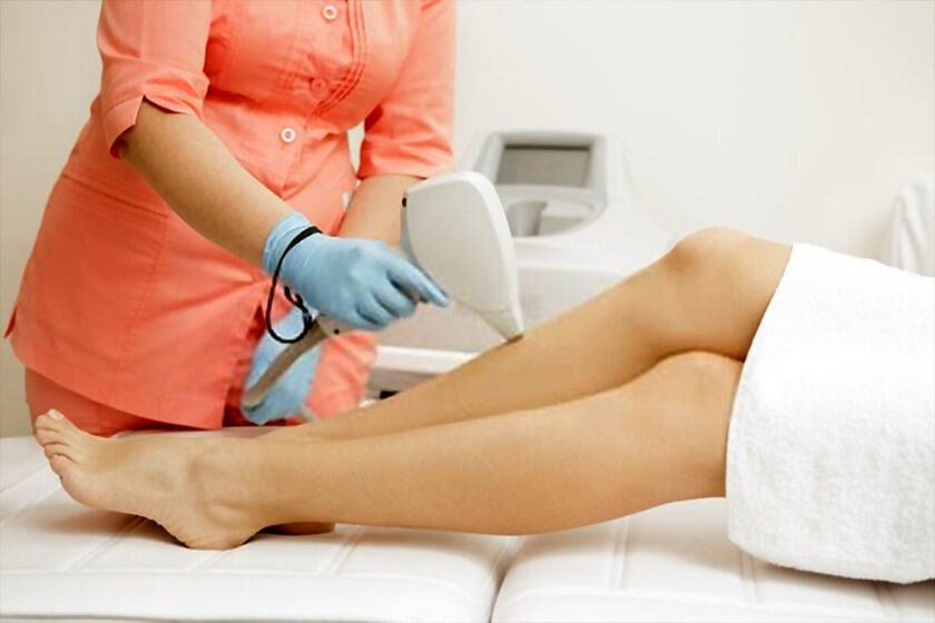 Whats involved with Laser hair removal