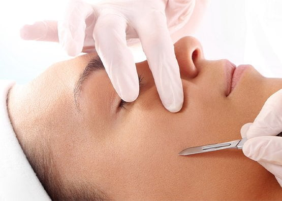 Dermaplaning how does it work